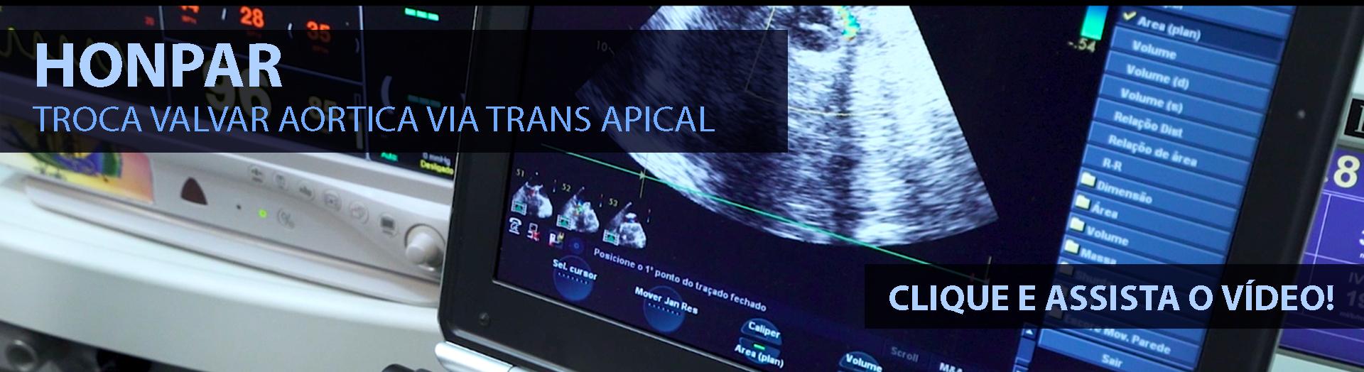 HONPAR - Troca valvar aortica via trans apical